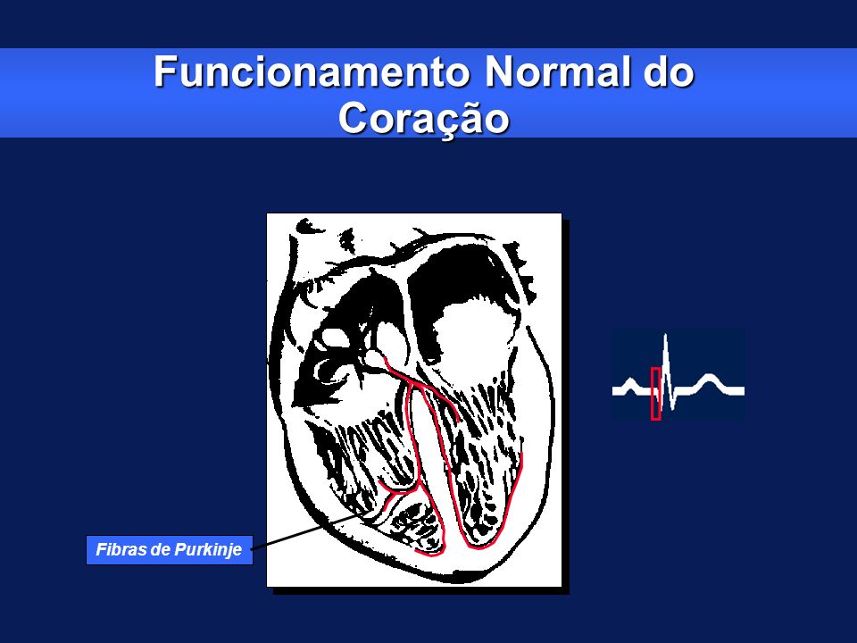 Funcionamento Normal do Coração Fibras de Purkinje