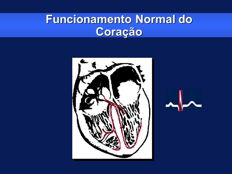 Exames Complementares ECG ( 50 a 55 % dos BAVTs) Holter ( baixa correlação com sintomas ) Teste Esteira ( avaliar BAV 1 º, 2 º ) Ecocardiograma ( esqueleto fibroso ) Monitor de Eventos Implantável