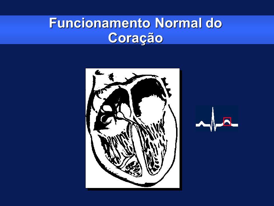 Disfunção do Nódulo Sinusal – Síndrome Bradi-Taqui Episódios de bradicardia e taquicardia intermitentes provenientes do NS ou do átrio Freqüência durante a bradicardia = 43 bpm Freqüência durante a taquicardia = 130 bpm