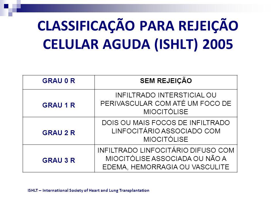 CLASSIFICAÇÃO PARA REJEIÇÃO CELULAR AGUDA (ISHLT) 2005 GRAU 0 RSEM REJEIÇÃO GRAU 1 R INFILTRADO INTERSTICIAL OU PERIVASCULAR COM ATÉ UM FOCO DE MIOCIT