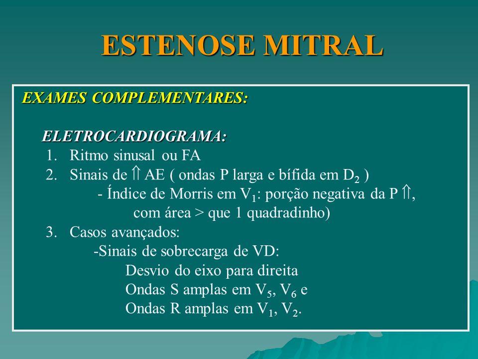 ESTENOSE MITRAL EXAMES COMPLEMENTARES: ELETROCARDIOGRAMA: ELETROCARDIOGRAMA: 1.Ritmo sinusal ou FA 2.Sinais de AE ( ondas P larga e bífida em D 2 ) -