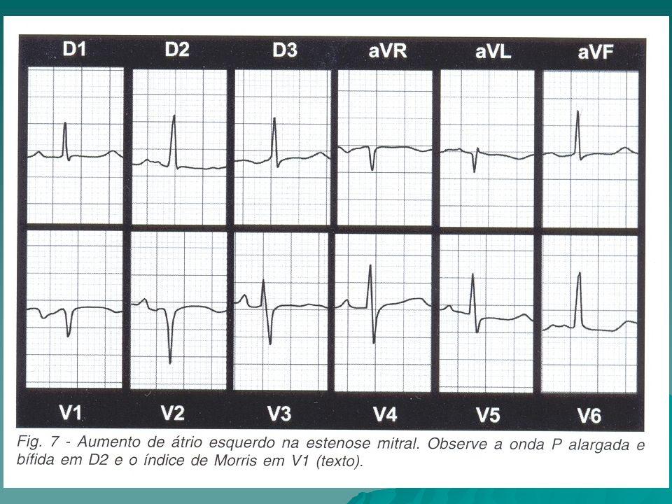 ESTENOSE MITRAL EXAMES COMPLEMENTARES: RX DE TÓRAX: RX DE TÓRAX: PA - PA - Duplo contorno na silhueta direita do coração.
