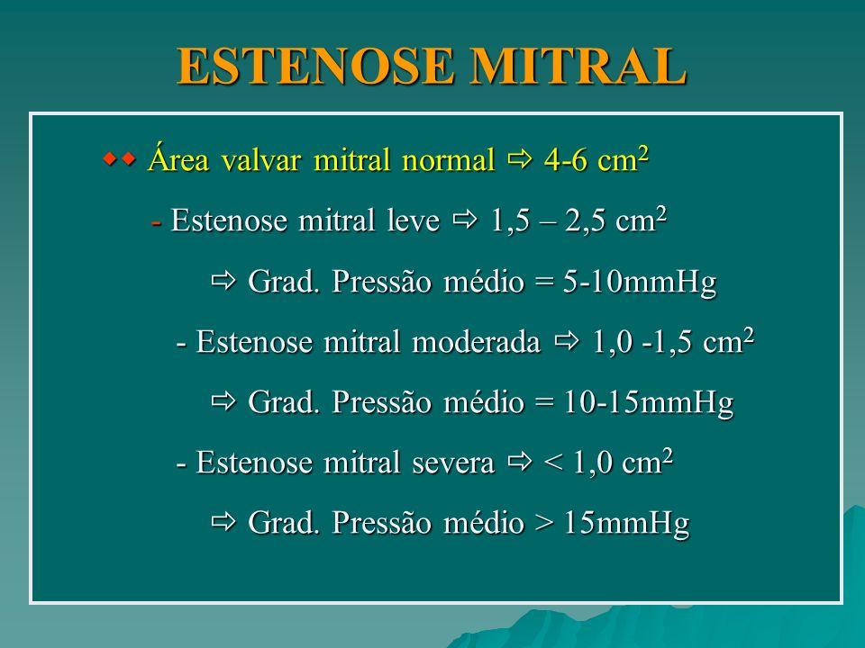 ESTENOSE MITRAL ESTENOSE MITRAL ETIOLOGIA: 1.