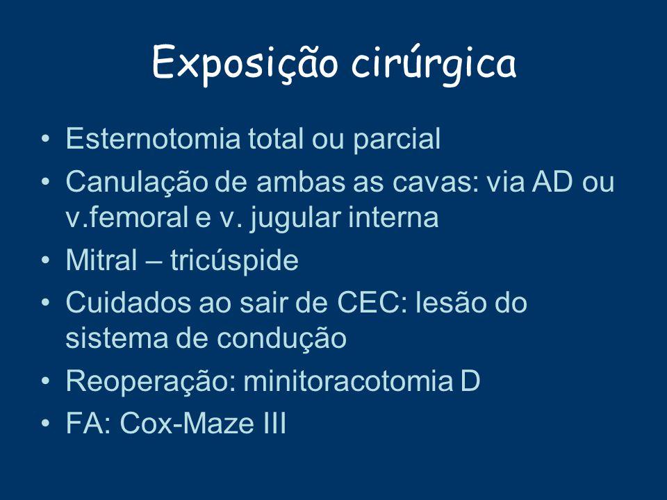 Exposição cirúrgica Esternotomia total ou parcial Canulação de ambas as cavas: via AD ou v.femoral e v. jugular interna Mitral – tricúspide Cuidados a