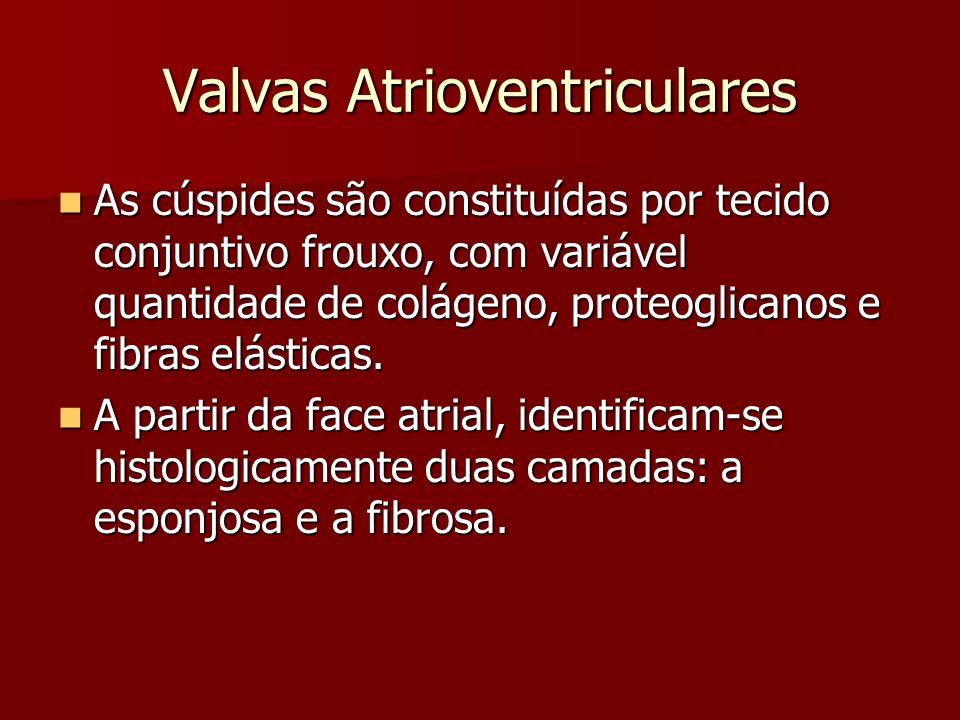 Valvas Atrioventriculares As cúspides são constituídas por tecido conjuntivo frouxo, com variável quantidade de colágeno, proteoglicanos e fibras elás