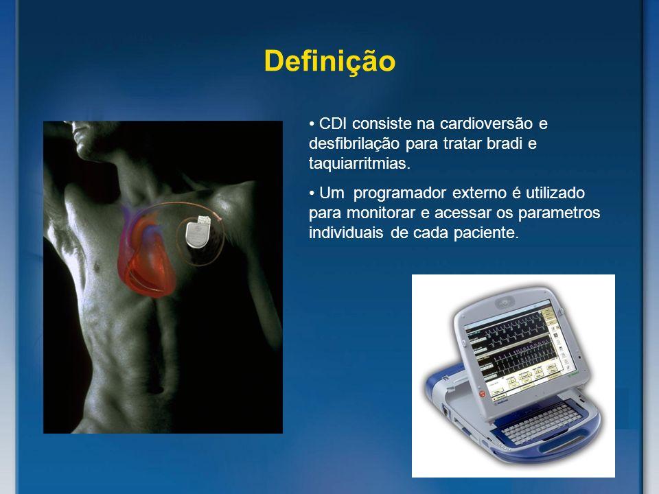 Definição CDI consiste na cardioversão e desfibrilação para tratar bradi e taquiarritmias. Um programador externo é utilizado para monitorar e acessar