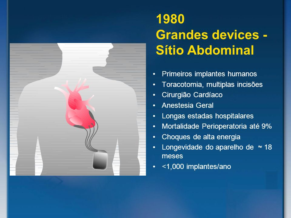 Primeiros implantes humanos Toracotomia, multiplas incisões Cirurgião Cardíaco Anestesia Geral Longas estadas hospitalares Mortalidade Perioperatoria