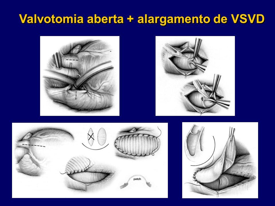 Valvotomia aberta + alargamento de VSVD