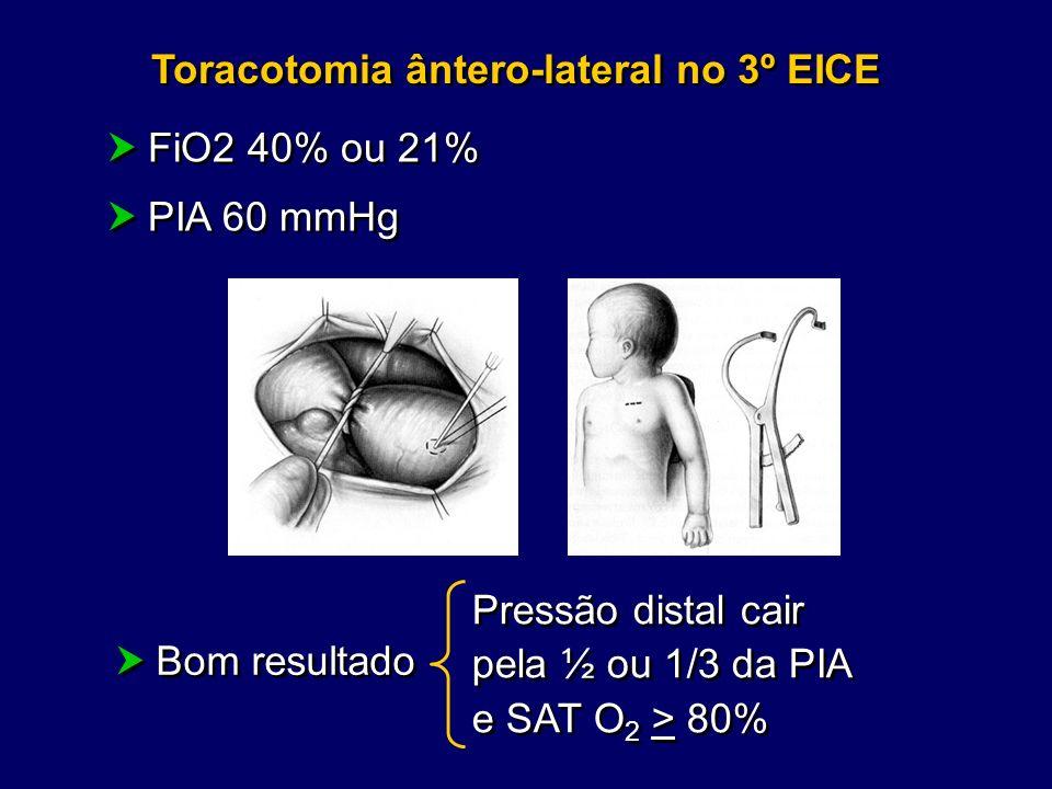 Toracotomia ântero-lateral no 3º EICE FiO2 40% ou 21% PIA 60 mmHg FiO2 40% ou 21% PIA 60 mmHg Pressão distal cair pela ½ ou 1/3 da PIA e SAT O 2 > 80%