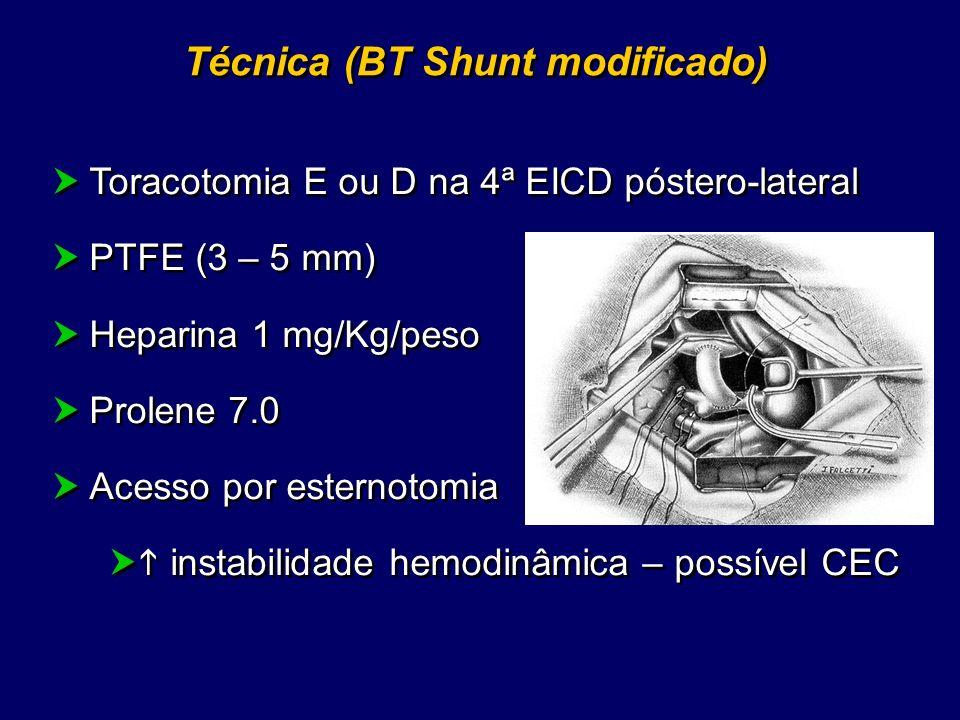 Complicações BT Shunt 1 - Técnica Hipóxia (Clampeamento temporário da artéria pulmonar) Acidose Fazer hiperventilação, PGE1, vasopressores, correção dos distúrbios metabólicos, avaliar CEC 1 - Técnica Hipóxia (Clampeamento temporário da artéria pulmonar) Acidose Fazer hiperventilação, PGE1, vasopressores, correção dos distúrbios metabólicos, avaliar CEC 2 - Prótese Trombose Anastomose com dificuldade técnica 2 - Prótese Trombose Anastomose com dificuldade técnica