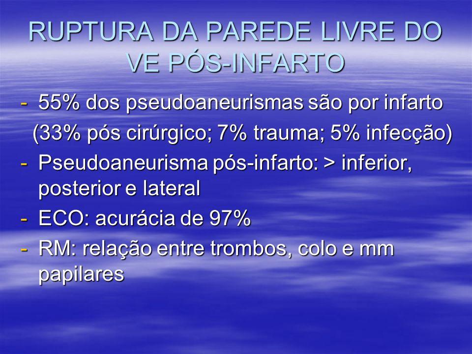 RUPTURA DA PAREDE LIVRE DO VE PÓS-INFARTO -55% dos pseudoaneurismas são por infarto (33% pós cirúrgico; 7% trauma; 5% infecção) (33% pós cirúrgico; 7%