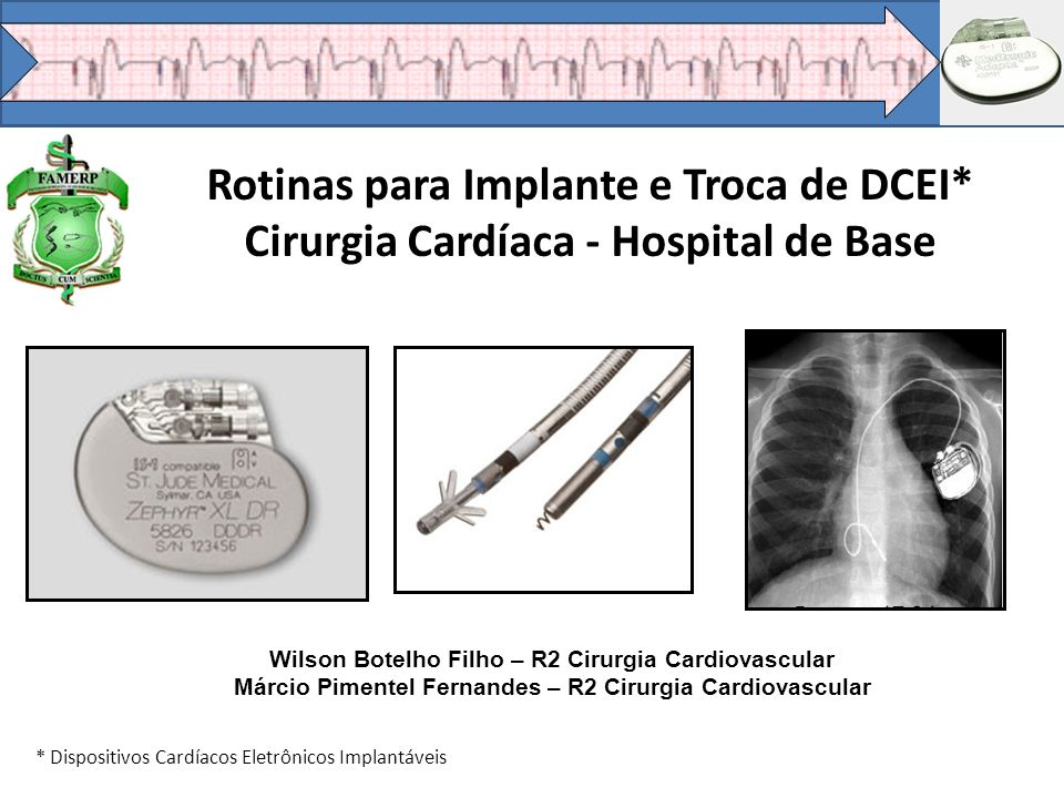Rotinas para Implante e Troca de DCEI* Cirurgia Cardíaca - Hospital de Base * Dispositivos Cardíacos Eletrônicos Implantáveis Wilson Botelho Filho – R