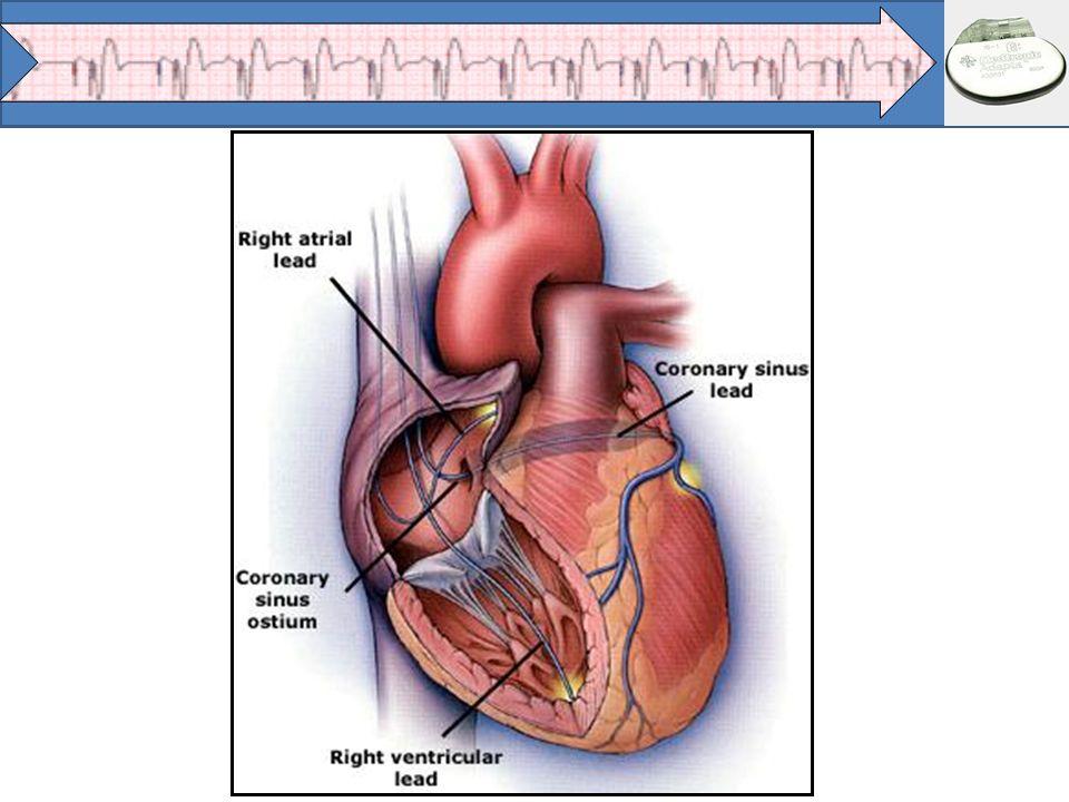 Técnica Operatória Monitorização: ECG (fora da incidência da escopia) e Oximetria de Pulso; Acesso venoso periférico (idosos); Decúbito dorsal sobre mesa radiotransparente; Flexão da cabeça do paciente para o lado contra-lateral; Imobilização dos membros se houver possibilidade de cardioversão elétrica ou paciente pouco colaborativo; Implante preferencialmente do lado esquerdo; Degermação do hemitórax escolhido com clorexedine degermante; Assepsia da região com clorexedine alcoólico.