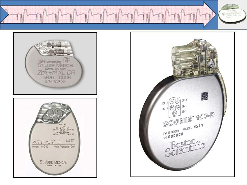 Eletrodos Endocárdicos Atrial: 52 - 53 cm (em forma de J) Ventricular: 58 - 60 cm (reto) Do seio coronário (maleável) Fixação - Passiva - Ativa Introdutores - 7 Fr ou 8 Fr - Para cada eletrodo deve-se pegar 1 introdutor * Mesma marca do gerador, tanto para eletrodos como para introdutores.