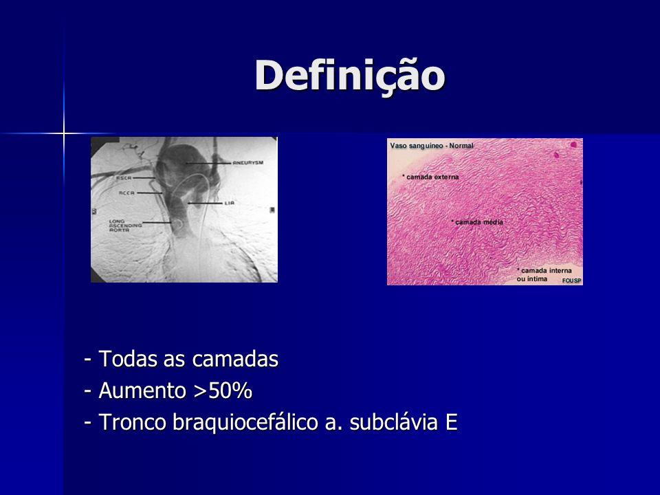Definição - Todas as camadas - Aumento >50% - Tronco braquiocefálico a. subclávia E