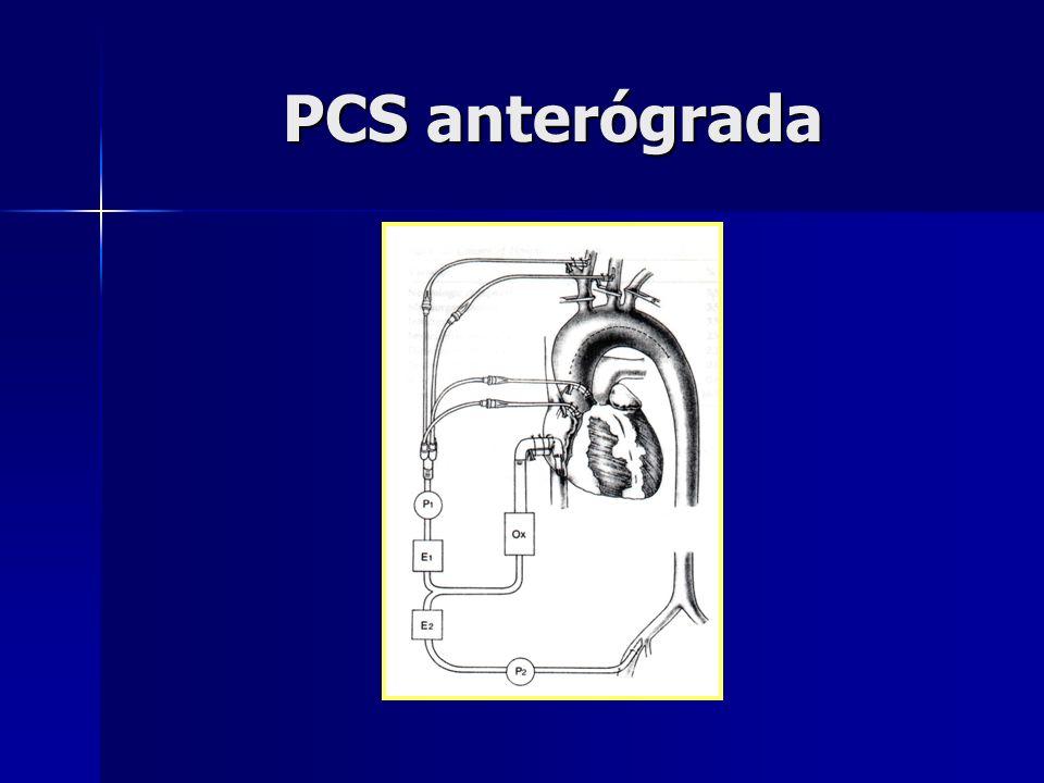 PCS anterógrada