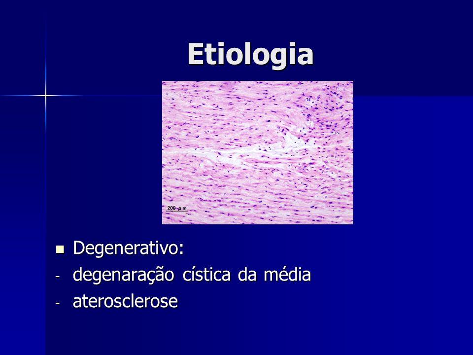 Etiologia Degenerativo: Degenerativo: - degenaração cística da média - aterosclerose