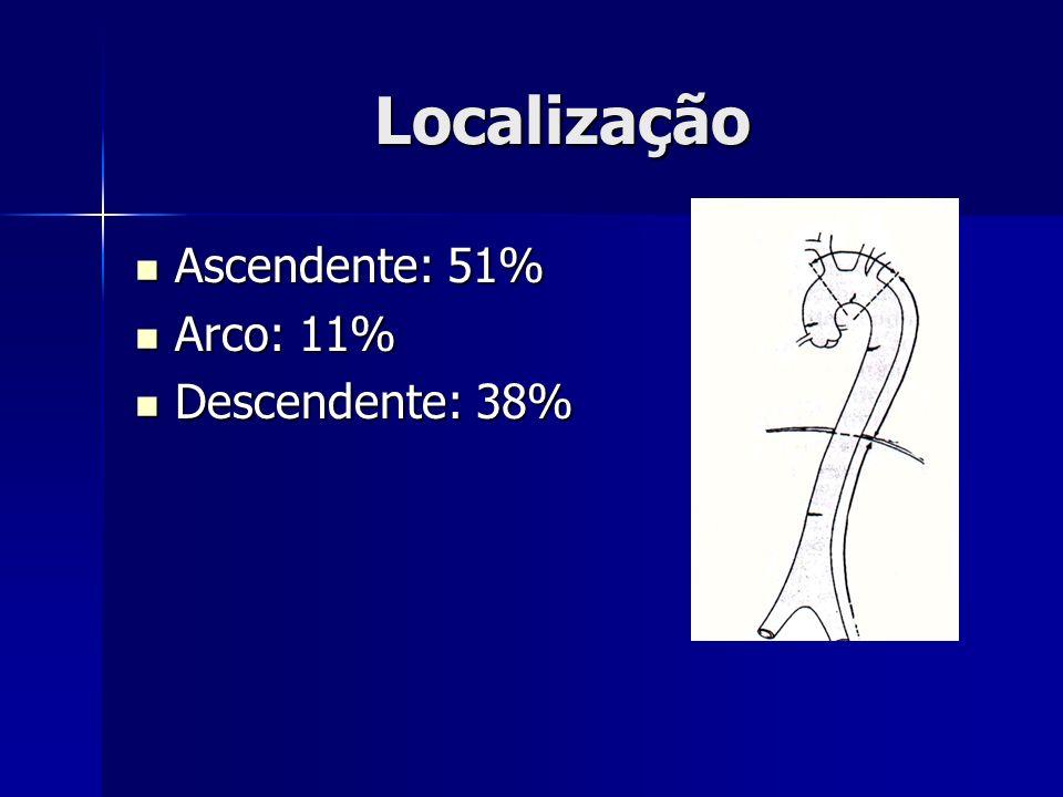 Localização Ascendente: 51% Ascendente: 51% Arco: 11% Arco: 11% Descendente: 38% Descendente: 38%
