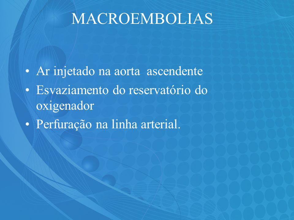 MACROEMBOLIAS Ar injetado na aorta ascendente Esvaziamento do reservatório do oxigenador Perfuração na linha arterial.