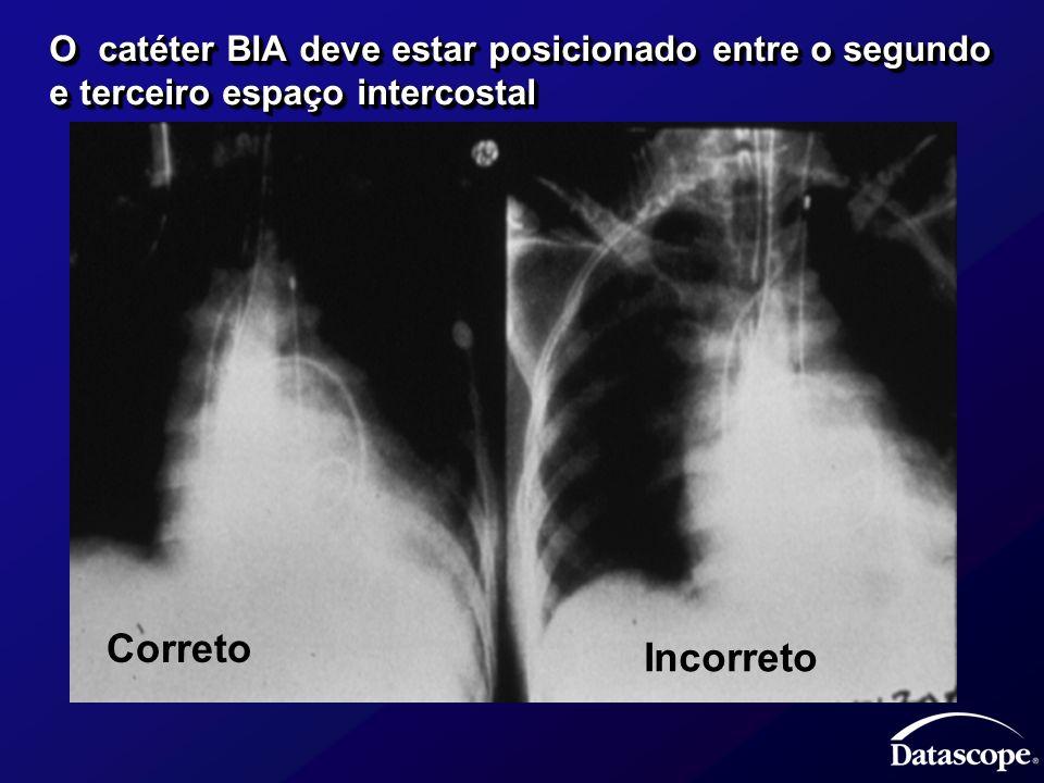 O catéter BIA deve estar posicionado entre o segundo e terceiro espaço intercostal Correto Incorreto