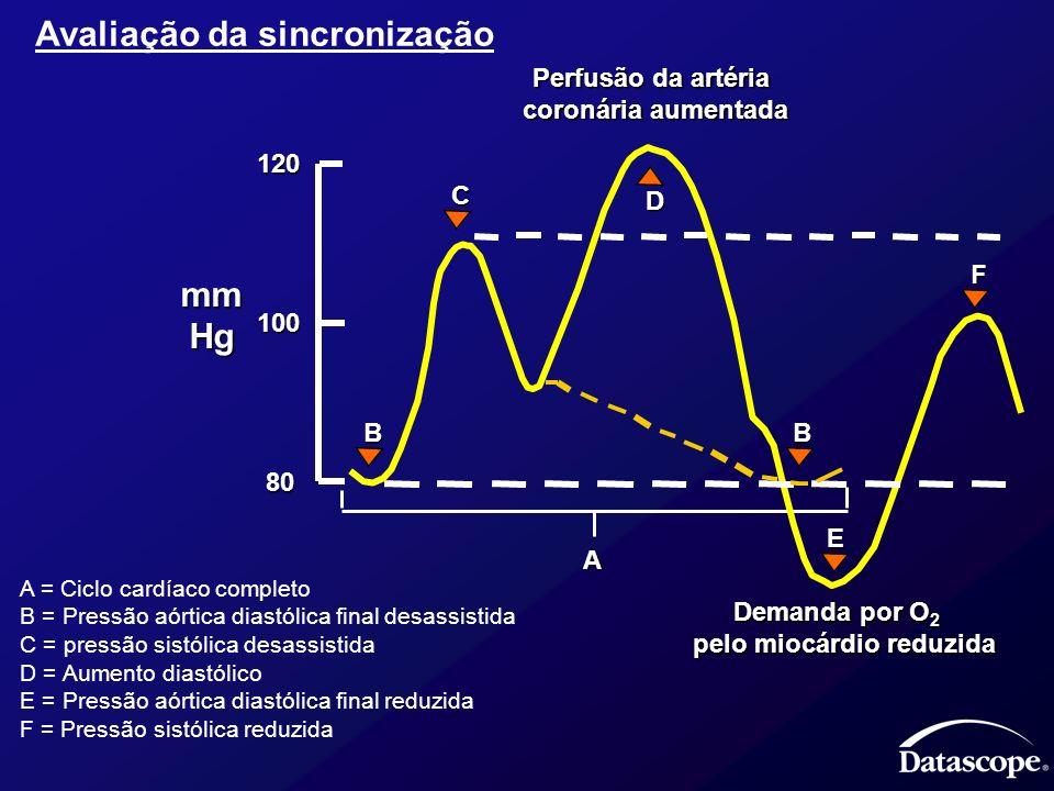 A = Ciclo cardíaco completo B = Pressão aórtica diastólica final desassistida C = pressão sistólica desassistida D = Aumento diastólico E = Pressão aó