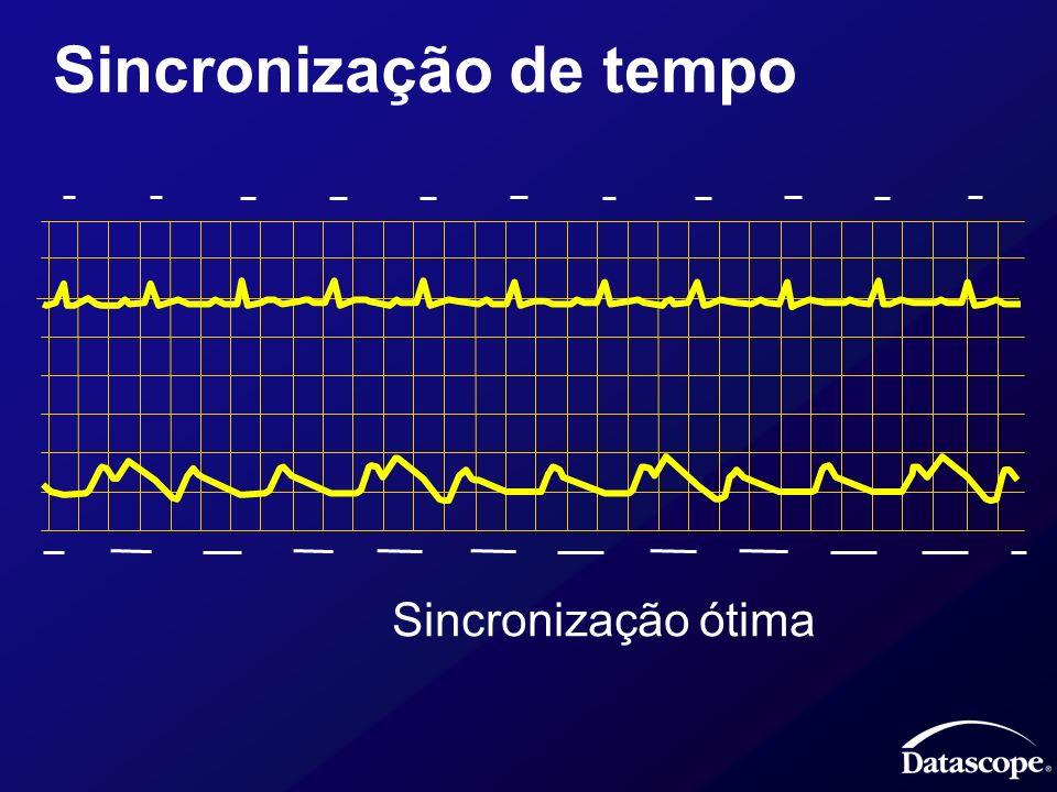 Sincronização de tempo Sincronização ótima