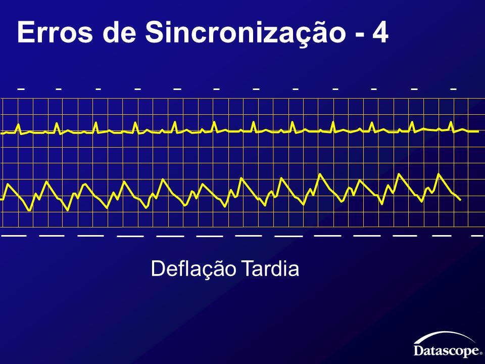 Erros de Sincronização - 4 Deflação Tardia