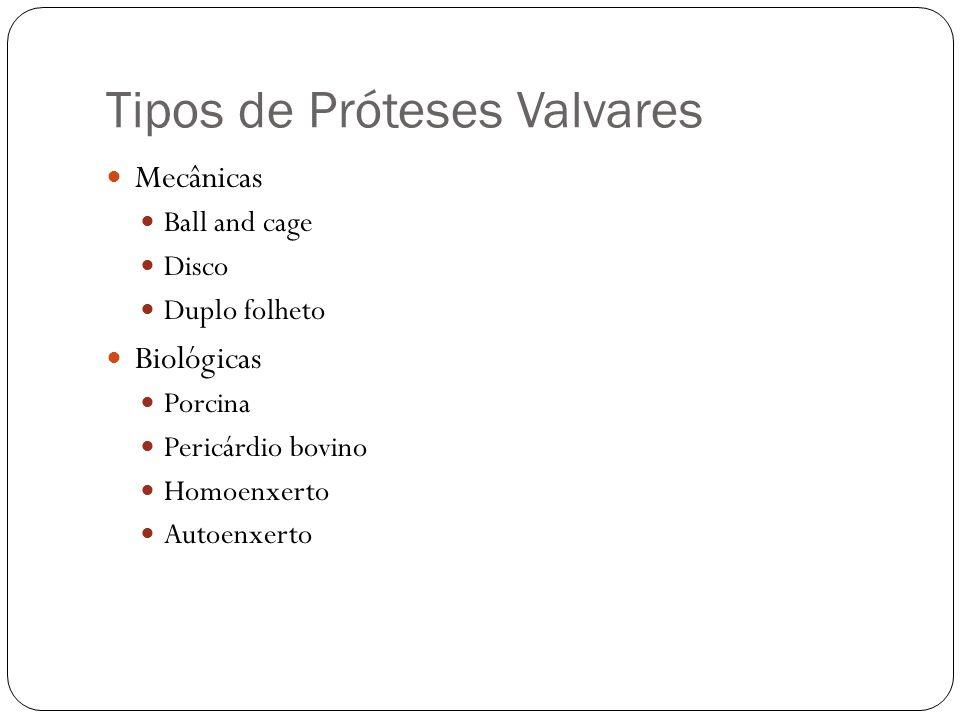 Tipos de Próteses Valvares Mecânicas Ball and cage Disco Duplo folheto Biológicas Porcina Pericárdio bovino Homoenxerto Autoenxerto