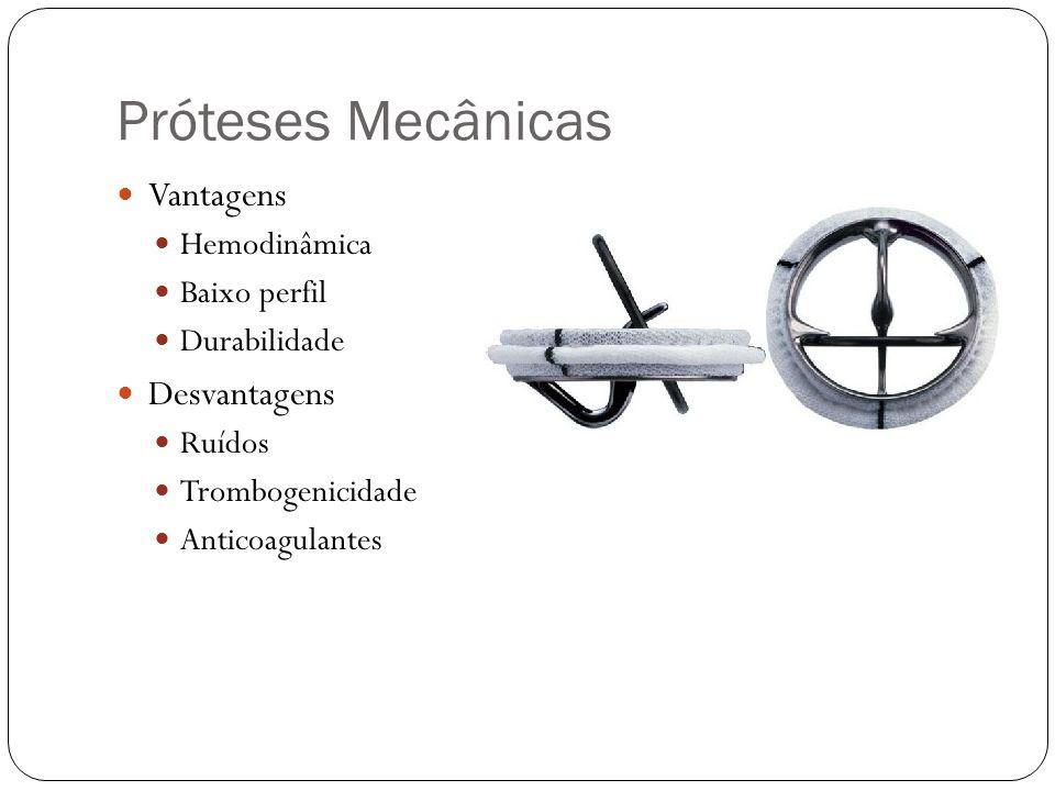 Próteses Mecânicas Vantagens Hemodinâmica Baixo perfil Durabilidade Desvantagens Ruídos Trombogenicidade Anticoagulantes