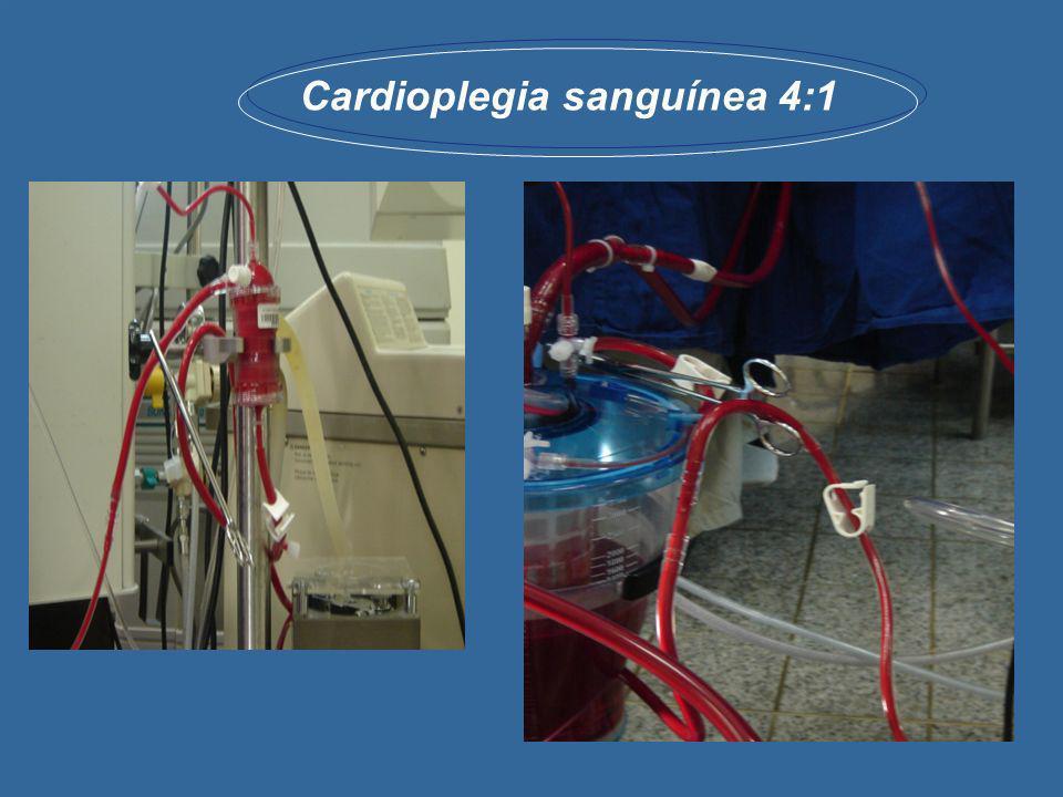 Cardioplegia sanguínea 4:1