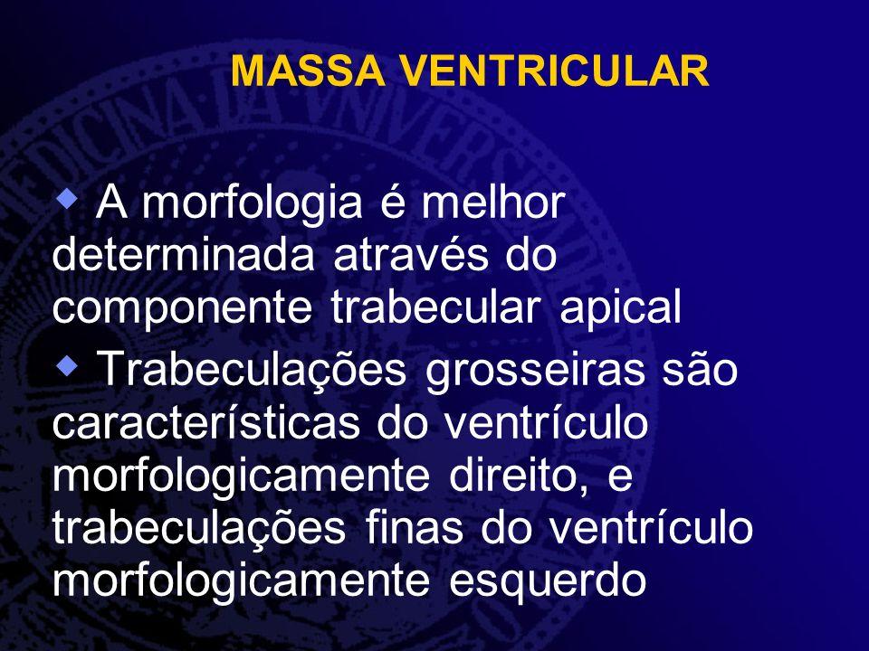 MASSA VENTRICULAR A morfologia é melhor determinada através do componente trabecular apical Trabeculações grosseiras são características do ventrículo