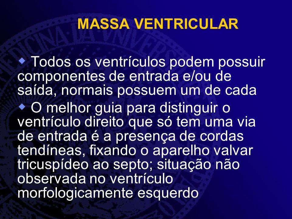 MASSA VENTRICULAR Todos os ventrículos podem possuir componentes de entrada e/ou de saída, normais possuem um de cada O melhor guia para distinguir o
