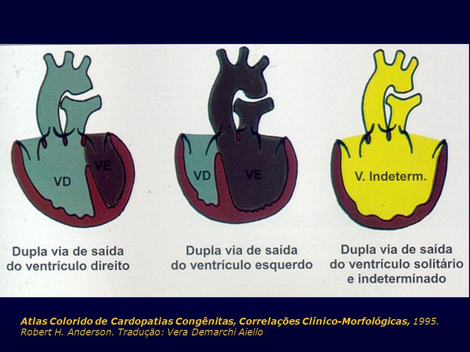 Atlas Colorido de Cardopatias Congênitas, Correlações Clínico-Morfológicas, 1995. Robert H. Anderson. Tradução: Vera Demarchi Aiello