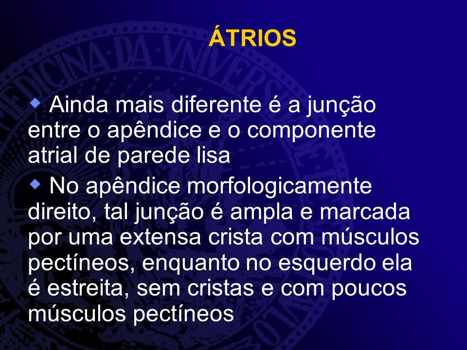 ÁTRIOS Ainda mais diferente é a junção entre o apêndice e o componente atrial de parede lisa No apêndice morfologicamente direito, tal junção é ampla