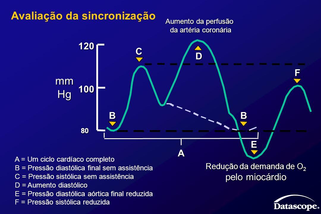 A = Um ciclo cardíaco completo B = Pressão diastólica final sem assistência C = Pressão sistólica sem assistência D = Aumento diastólico E = Pressão d