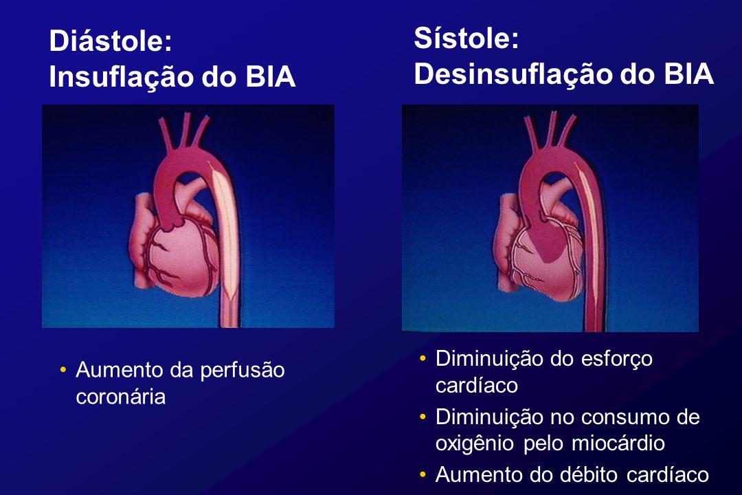 Diástole: Insuflação do BIA Aumento da perfusão coronária Sístole: Desinsuflação do BIA Diminuição do esforço cardíaco Diminuição no consumo de oxigên