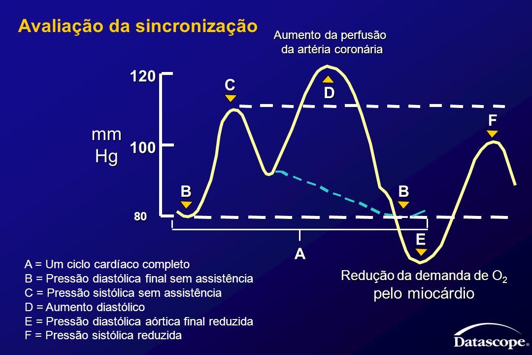 Pressão do VE Sistólico Diastólico final Ventrículo Esquerdo Volume Esforço de ejeção Tensão na parede Fluxo Sanguíneo Fluxo coronário Débito cardíaco Fluxo sanguíneo renal Pressão Aórtica Sistólica Diastólica Maccioli, GA, et al; Journal of Cardiothoracic Anesthesia 1988 June; 2(3):365-373 Efeitos fisiológicos da terapia de contrapulsação Cardíaco pós-carga Pré-carga