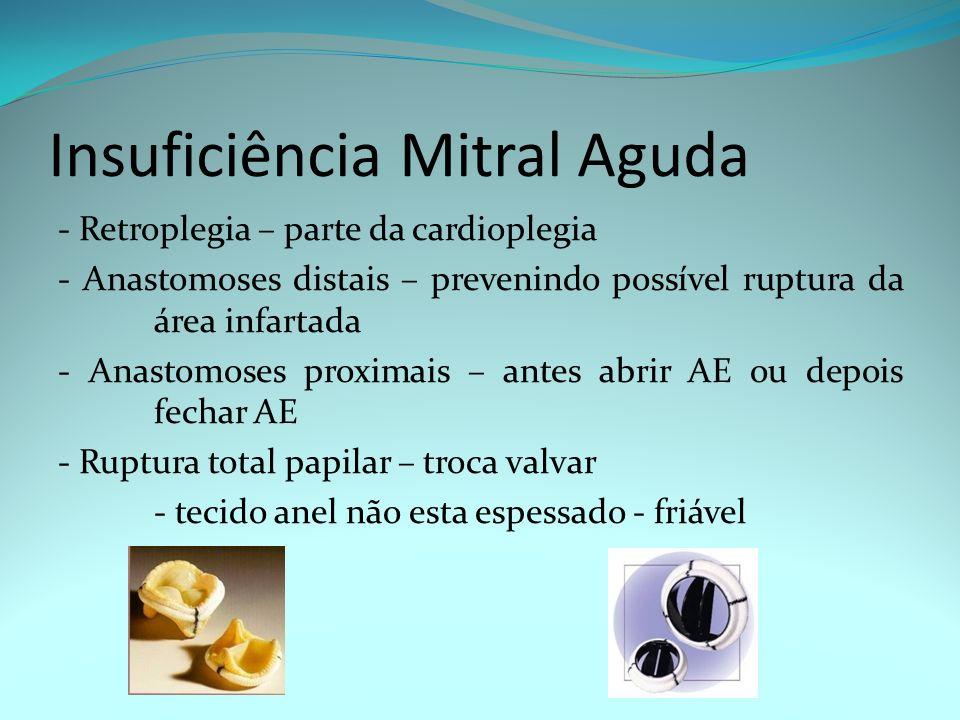 Insuficiência Mitral Aguda - Retroplegia – parte da cardioplegia - Anastomoses distais – prevenindo possível ruptura da área infartada - Anastomoses p