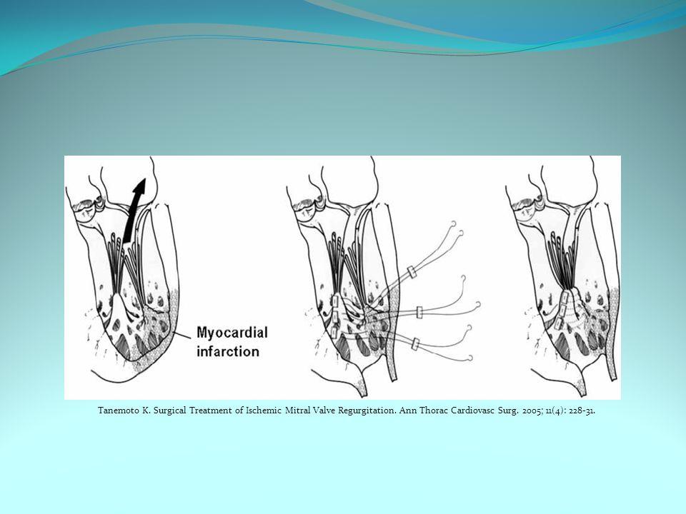 Tanemoto K. Surgical Treatment of Ischemic Mitral Valve Regurgitation. Ann Thorac Cardiovasc Surg. 2005; 11(4): 228-31.