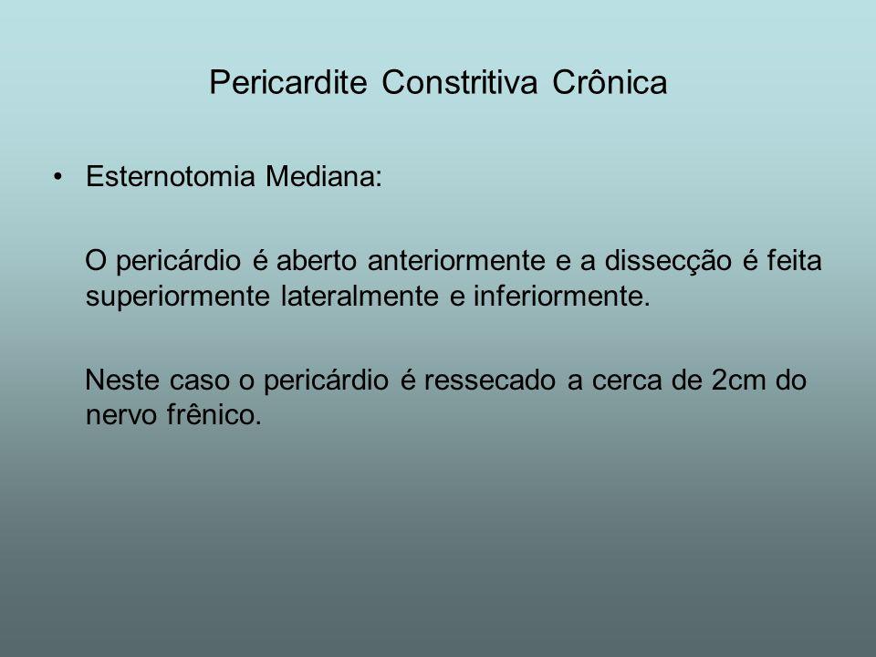 Esternotomia Mediana: O pericárdio é aberto anteriormente e a dissecção é feita superiormente lateralmente e inferiormente. Neste caso o pericárdio é