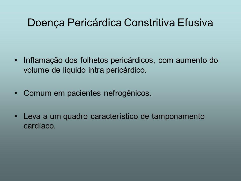 Doença Pericárdica Constritiva Efusiva Inflamação dos folhetos pericárdicos, com aumento do volume de liquido intra pericárdico. Comum em pacientes ne