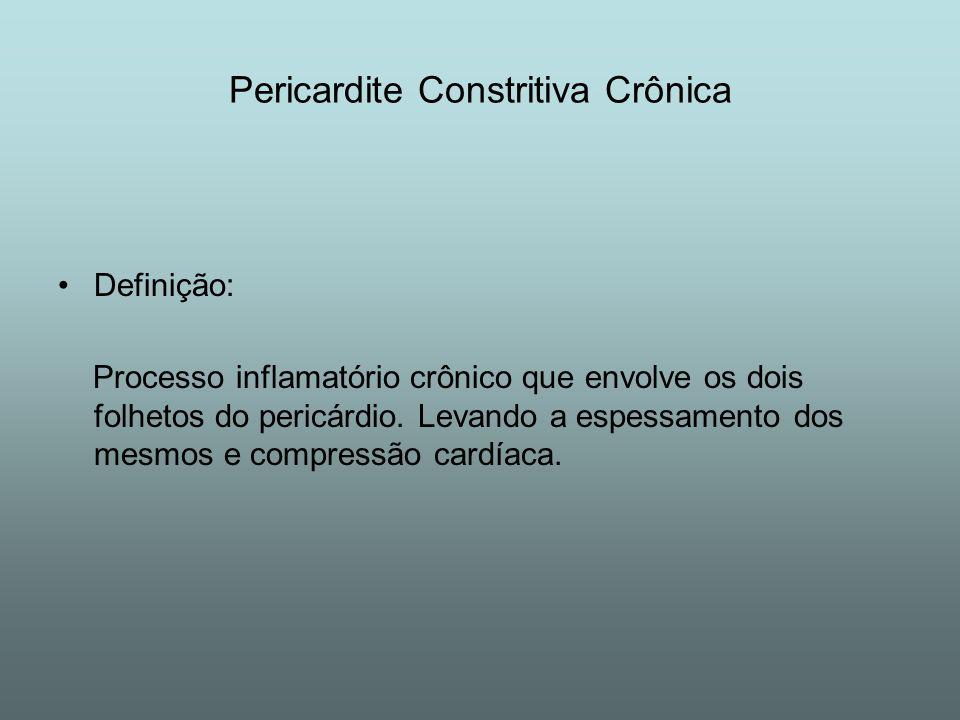 Pericardite Constritiva Crônica Definição: Processo inflamatório crônico que envolve os dois folhetos do pericárdio. Levando a espessamento dos mesmos