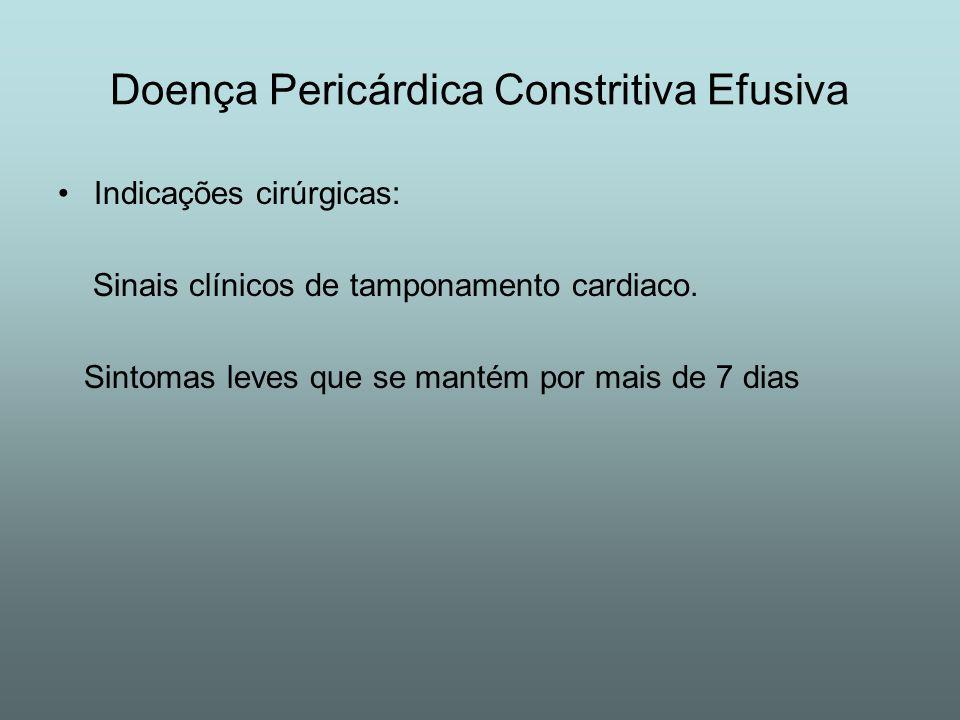 Doença Pericárdica Constritiva Efusiva Indicações cirúrgicas: Sinais clínicos de tamponamento cardiaco. Sintomas leves que se mantém por mais de 7 dia