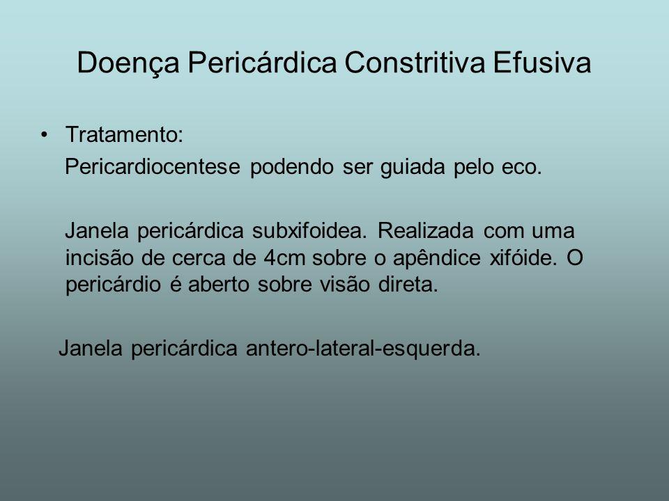 Doença Pericárdica Constritiva Efusiva Tratamento: Pericardiocentese podendo ser guiada pelo eco. Janela pericárdica subxifoidea. Realizada com uma in