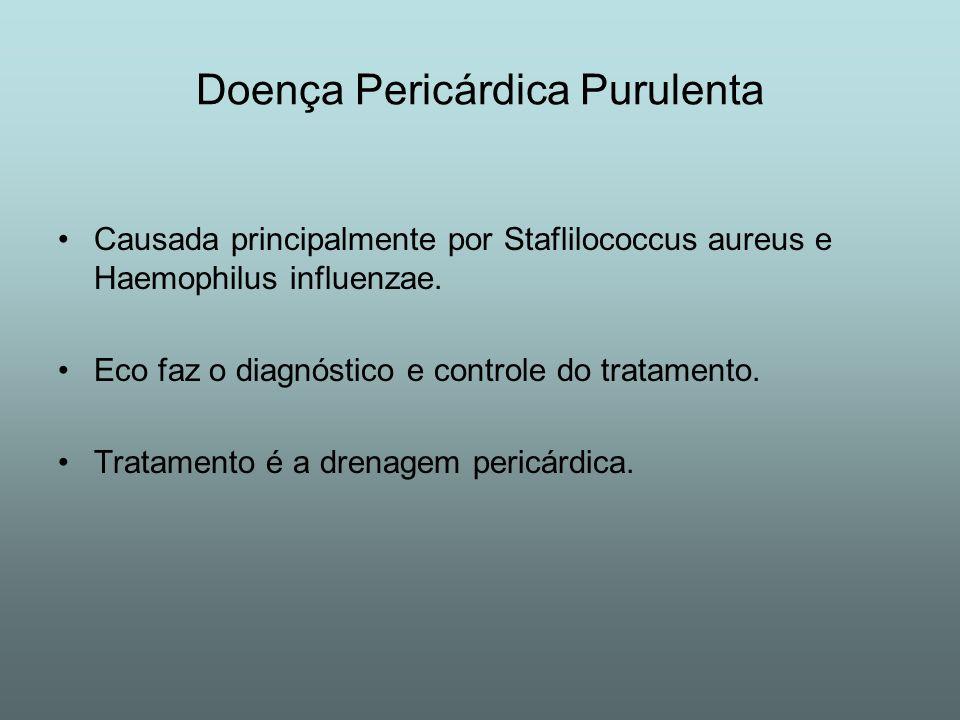 Doença Pericárdica Purulenta Causada principalmente por Staflilococcus aureus e Haemophilus influenzae. Eco faz o diagnóstico e controle do tratamento