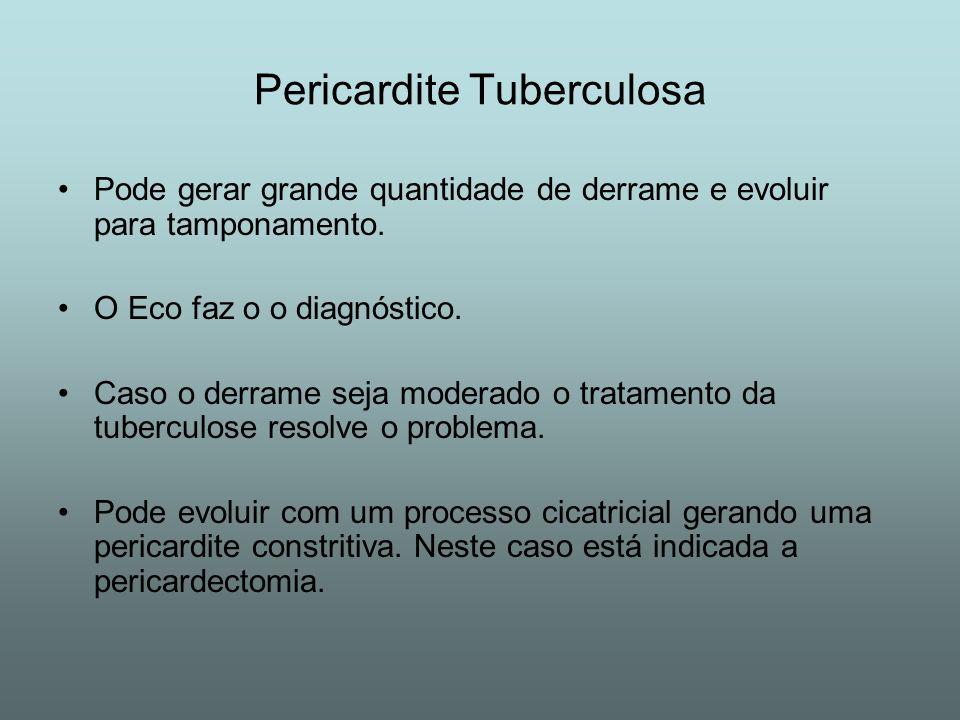 Pericardite Tuberculosa Pode gerar grande quantidade de derrame e evoluir para tamponamento. O Eco faz o o diagnóstico. Caso o derrame seja moderado o