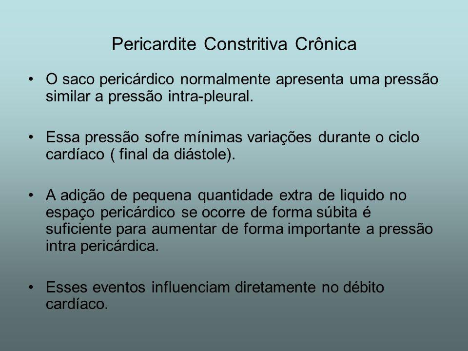 Pericardite Constritiva Crônica Etiologia desconhecida Apresentação clinica: Sintomas iniciais de fadiga,turgência jugular, hepatomegalia, edema e ascite.