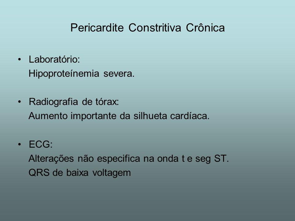 Pericardite Constritiva Crônica Laboratório: Hipoproteínemia severa. Radiografia de tórax: Aumento importante da silhueta cardíaca. ECG: Alterações nã
