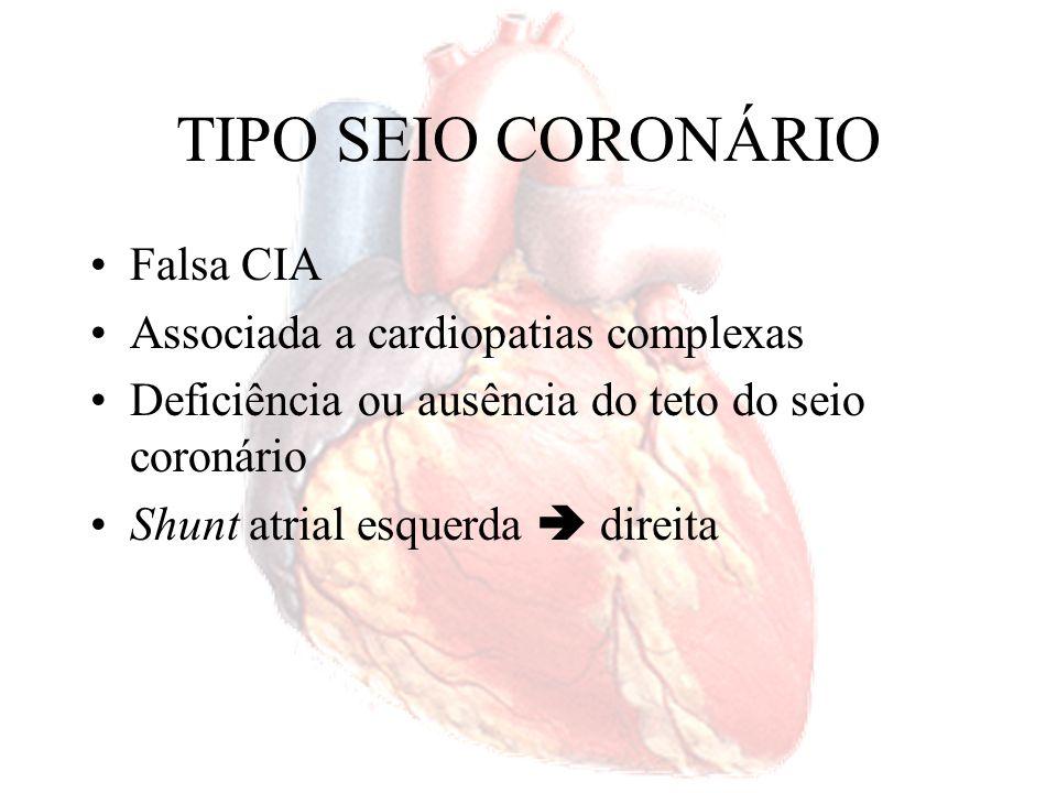 TIPO SEIO CORONÁRIO Falsa CIA Associada a cardiopatias complexas Deficiência ou ausência do teto do seio coronário Shunt atrial esquerda direita