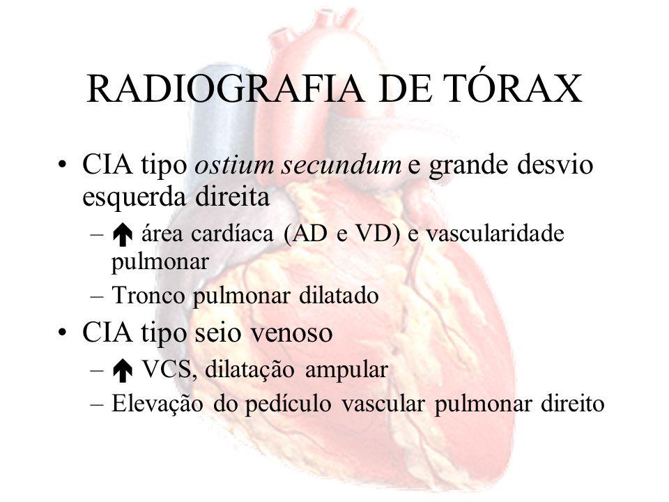 RADIOGRAFIA DE TÓRAX CIA tipo ostium secundum e grande desvio esquerda direita – área cardíaca (AD e VD) e vascularidade pulmonar –Tronco pulmonar dil